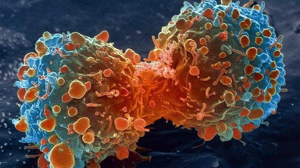 Se poate vindeca adenomul de prostata