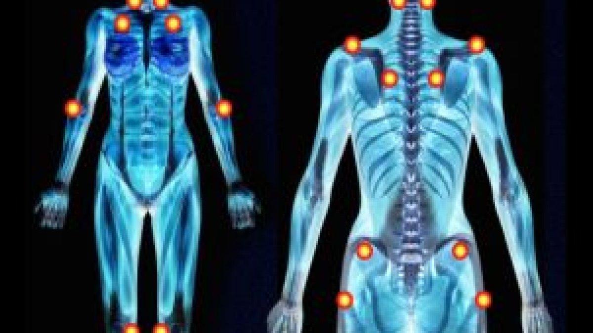fibromialgia simptomul de pierdere în greutate
