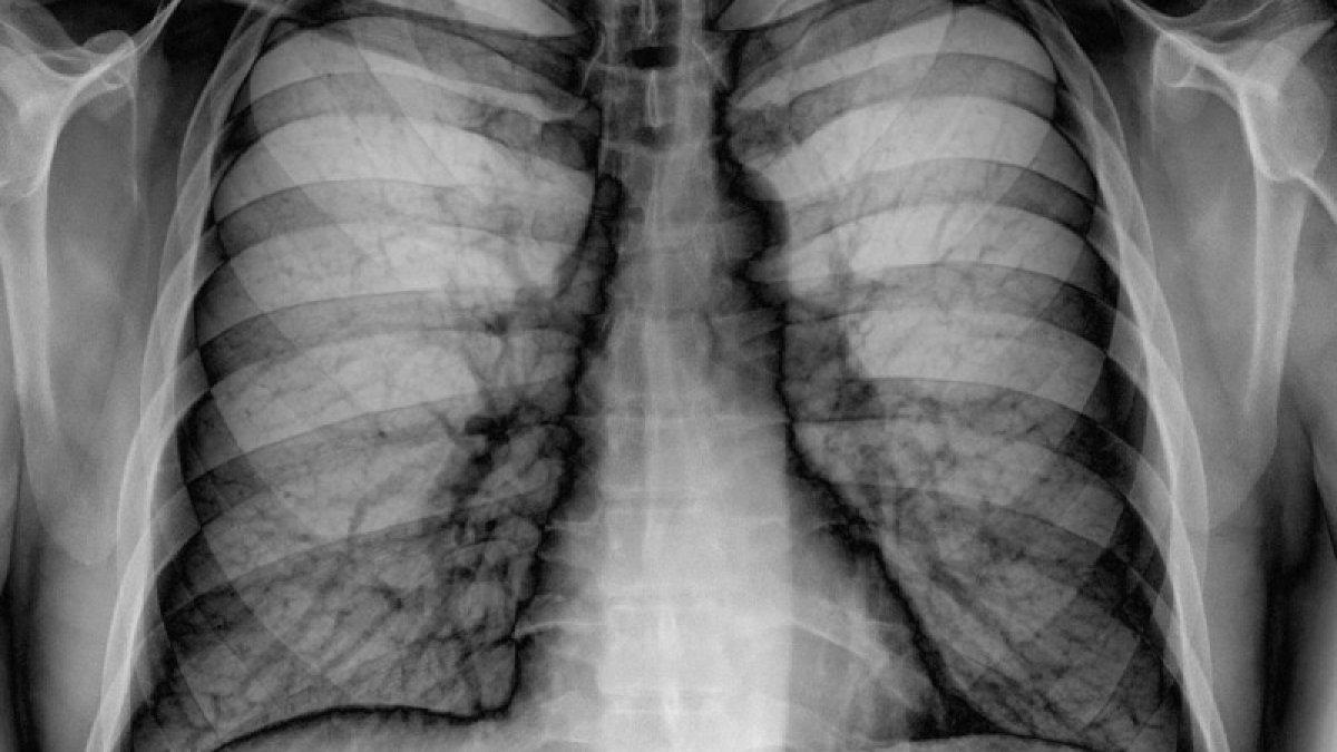 bladder papilloma pathology pastile pentru viermi în timpul hrănirii