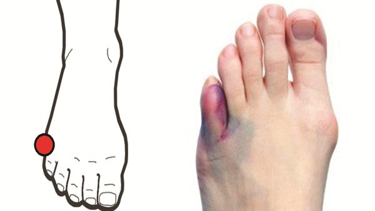 """Negii sau verucile: metode de tratament - Sănătate > Dermato – venerologie – hpv.iubescstudentia.ro"""" title=""""Dr. Mihai Lupu, Tratament veruci intre degetele de la picioare"""" style=""""width:300px"""" /><br /> Verucile negii sunt tumorete benigne ale pielii si mucoaselor, extrem de frecvent intalnite in practica dermatologica. Ele se datoreaza infectiei locale a tegumentelor cu virusul HPV human papillomavirus. Se cunosc pana in momentul de fata peste de subtipuri de HPV, acestea provocand o varietate de manifestari la nivelul pielii si mucoaselor. Verucile sau negii afecteaza cel mai des copiii de varsta scolara, dar pot sa apara la orice varsta.</p> <p> La acesti pacienti verucile persista sau reapar chiar si dupa <b>Dela ce apar negii la picior</b> tratament corect efectuat. Perioada de incubatie este variabila si poate dura chiar si 12 luni in care persoana, desi infectata, nu prezinta nici un fel de leziuni <strong>Dela ce apar negii la picior</strong> piele sau simptomatologie. Spre deosebire de bataturi insa, in interiorul verucilor de natura virala de pe palme si talpi se pot observa unul sau mai multe puncte negre care se datoreaza trombozei blocarii cu cheaguri de sange unor vase de sange foarte mici de la nivelul pielii. In functie de aspectul clinic, regiunea anatomica pe care apar si subtipul de virus HPV, verucile pot avea mai multe forme clinice distincte, dupa cum urmeaza. Verucile vulgare apar de obicei pe dorsul degetelor de la maini sau picioare, in jurul unghiilor cand pot fi urmate de deformarea unghiilor si sunt frecvent rezistente la tratament si pe tegumentele genunchilor si au un aspect conopidiform.</p> <h3>Tratament veruci intre degetele de la picioare</h3> <p> <img src="""
