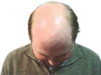 Государственные клиники лечение выпадение волос у женщин