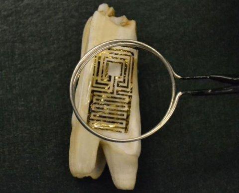 Cum vor fi urm�ri�i oamenii. I-au instalat un microcip �n dinte. Descoperirea care a revoltat lumea