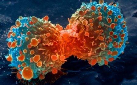 Descoperire revoluţionară în tratamentul cancerului. Molecula distruge numai celulele canceroase