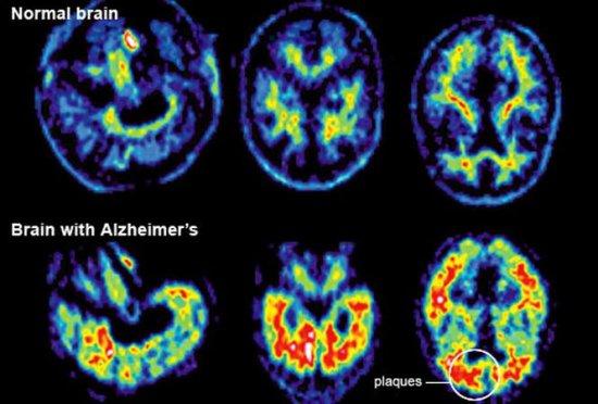 Descoperire remarcabilă. Testul care detectează riscul de apariţie a bolii Alzheimer 407