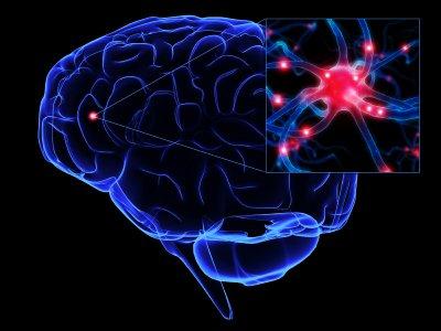 STUDIU: Persoanele care suferă de sindromul oboselii cronice prezintă ANOMALII CEREBRALE 416