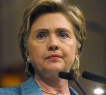 Pe Hillary Clinton o doare în cot, la propriu... Secretarul american de Stat a suferit o fractură
