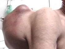 Tumoră gigant, crescută în cinci luni pe spatele unui bătrân din Iaşi (VIDEO)