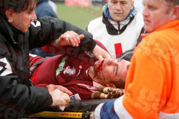 Durităţi în Liga I: Fernandes, umplut de sânge la Alba Iulia. Patru dinamovişti la infirmerie după derby-ul cu CFR