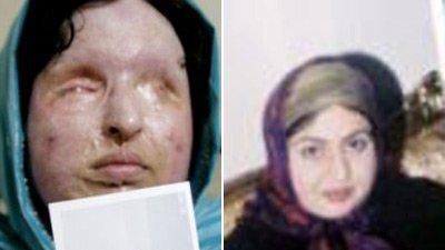 Justiţie iraniană: O femeie orbită de soţ cu acid are dreptul la răzbunare