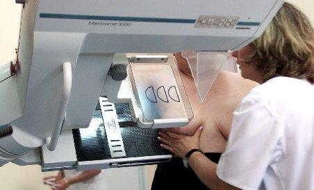 Cancerul mamar, tratat fără mutilare. Medicii reconstruiesc pe loc sânul, după înlăturarea tumorii