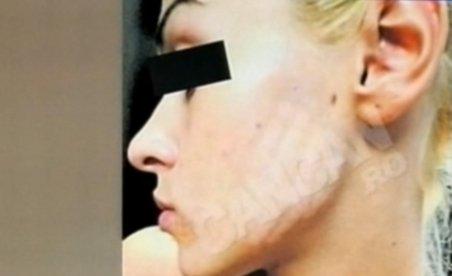 Şocant! Tânără mutilată la cosmetică, din cauza unui tratament anti-acnee