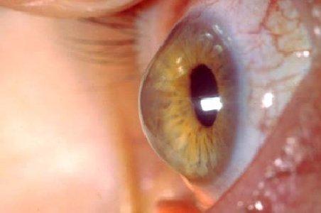 Keratoconul - boala care distruge corneea: Apare mai des la cei cu lentile contact şi alergii oculare