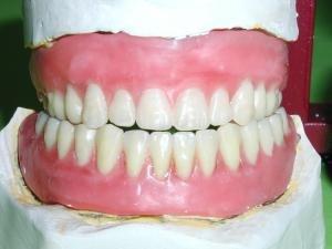 A jefuit o bancă pentru o proteză dentară