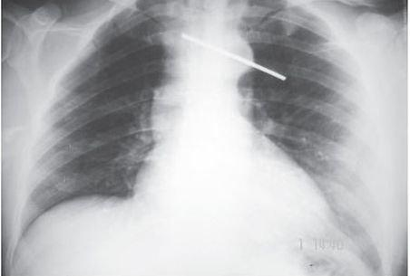 Medicii botoşăneni au descoperit în corpul unei bătrâne o tijă metalică de 20 cm