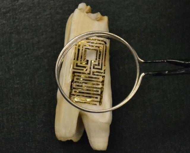 Cum vor fi urmăriţi oamenii. I-au instalat un microcip în dinte. Descoperirea care a revoltat lumea