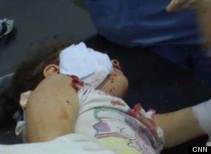 Imagini ŞOCANTE din Siria! O fetiţă de 4 ani a fost împuşcata de un lunetist