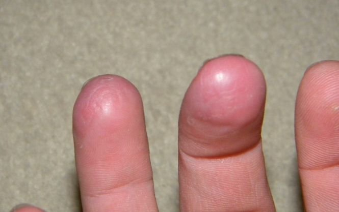 Premieră medicală. Degetul unui bărbat a început să crească la loc, după ce a fost secţionat de un cal