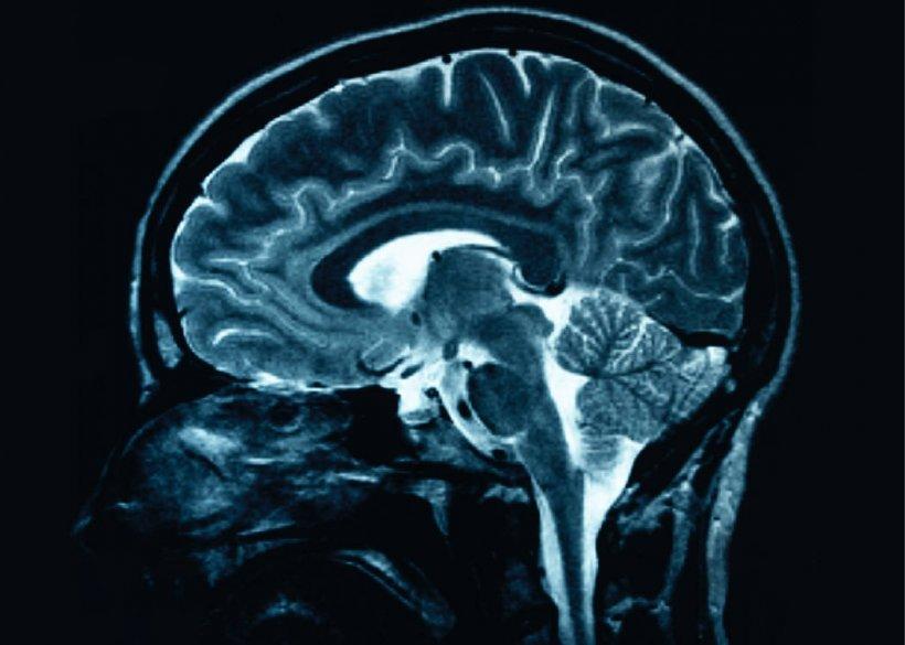 Studiu: Creierul începe să îmbătrânească după vârsta de 24 de ani