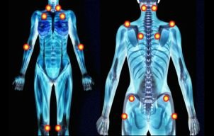 Dureri de spate şi oboseală constantă? Ai putea suferi de fibromialgie! Iată simptomele şi cum să te tratezi