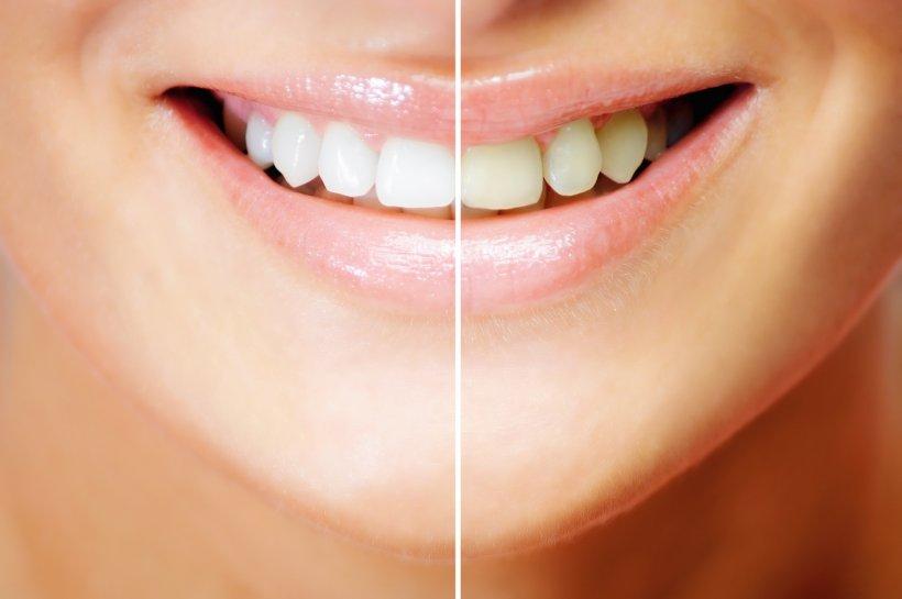 Albirea dintilor acasa. Solutii pentru dinti albi