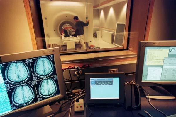 Primul creier uman aproape complet format, obţinut în laborator, în Statele Unite ale Americii