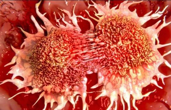 Descoperire medicală: Alimentul care ucide 85% din celulele cancerului pulmonar