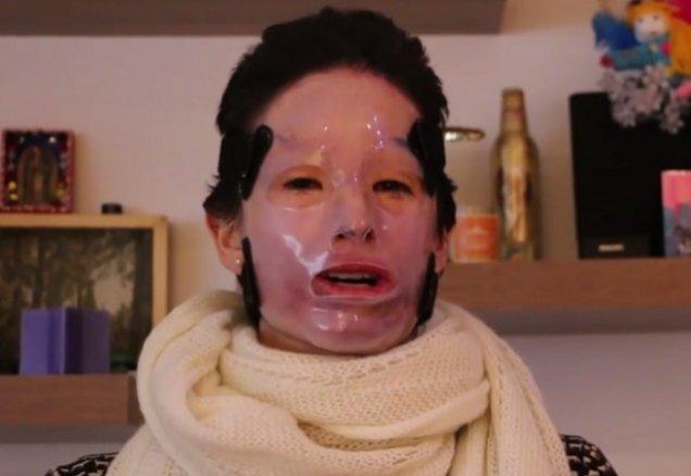 I-a fost aruncat acid sulfuric în faţă! După doi ani, femeia a avut curajul să-şi scoată masca VIDEO
