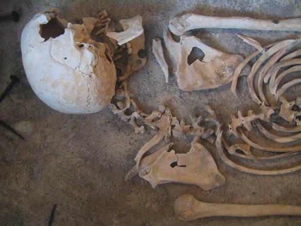 A murit din cauza unei maladii ciudate. Primul caz de scorbut din lume, descoperit în Egipt