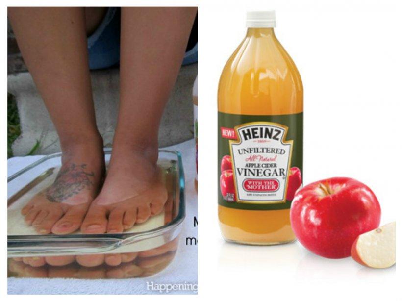 îmbrățișarea picioarelor cu oțet de mere în varicoză