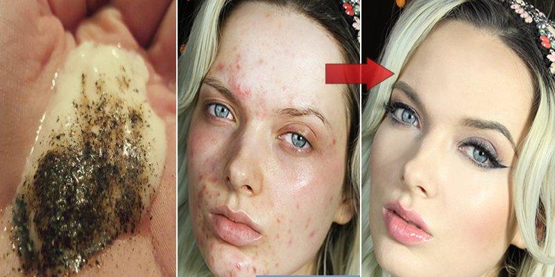 Amesteca aceste doua ingrediente si vezi ce se intampla cu pielea ta cateva minute mai tarziu!