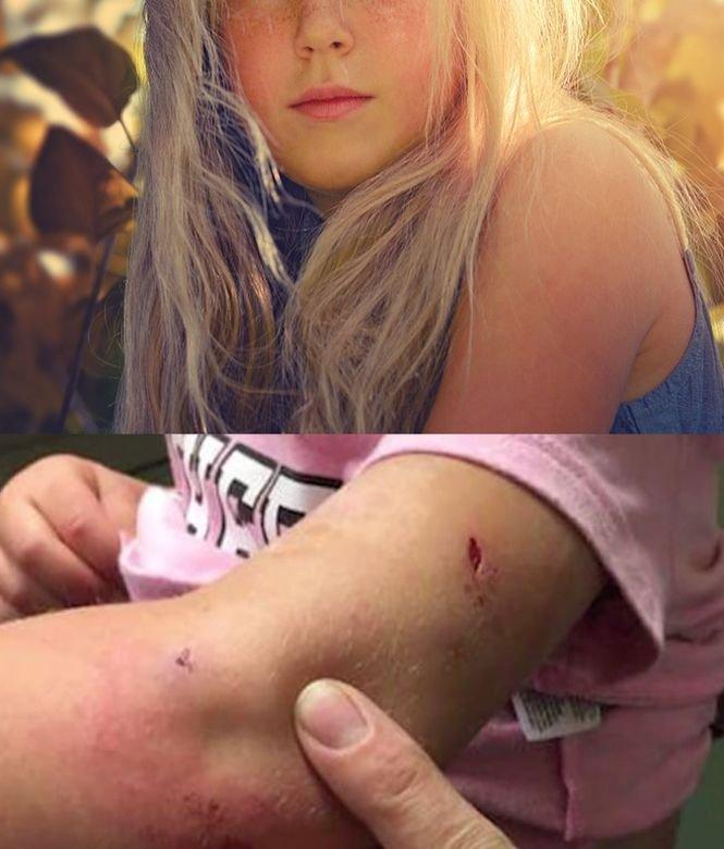 Se aflau în pădure alături de fetița lor. Copila a fost atacată de un animal sălbatic. A târât-o câțiva metri și... Ce a făcut mama fetiței