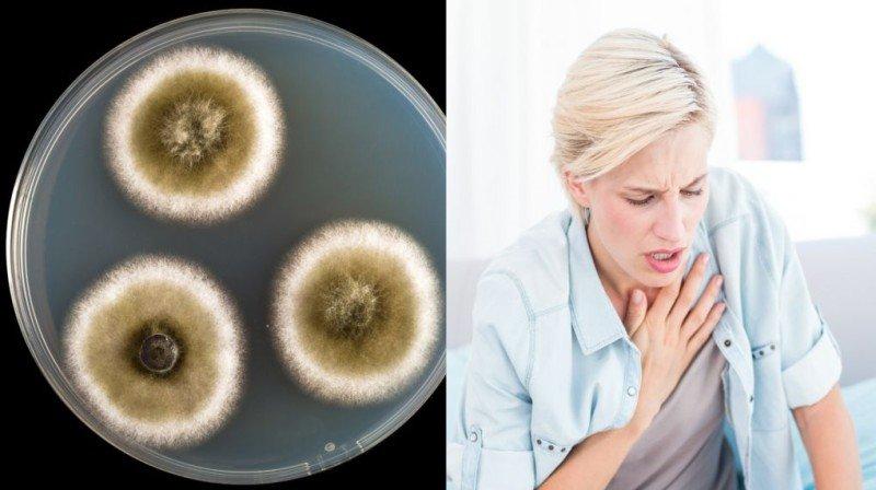 11 semne care iti spun ca ai fost expus la mucegaiul toxic din casa!