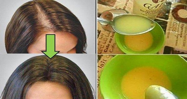 Toti medicii au fost surprinsi! Femeia asta si-a aplicat o masca iar parul a inceput sa-i creasca imediat!