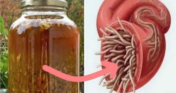 care pastile vor ucide paraziții din organism