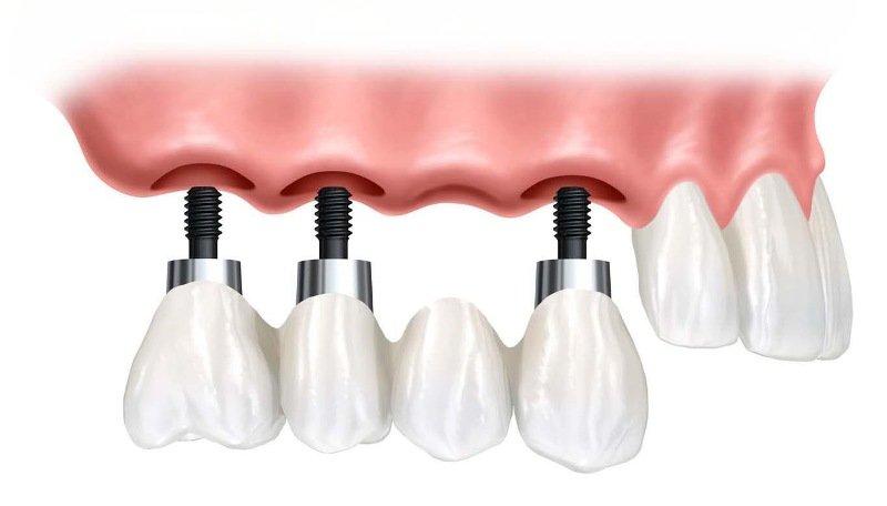 (P) 3 intrebari fundamentale ale caror raspunsuri conteaza in cazul unui implant dentar
