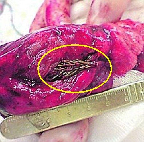 """Caz șocant. Medicii au crezut că au halucinații când au văzut ce avea pacientul în plămâni. """"Are rădăcini!''"""