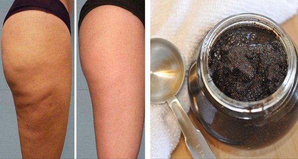 Pasta din două ingrediente care șterge celulita pe picioare și posterior! Femeile din Brazilia îl folosesc și este marele lor secret!