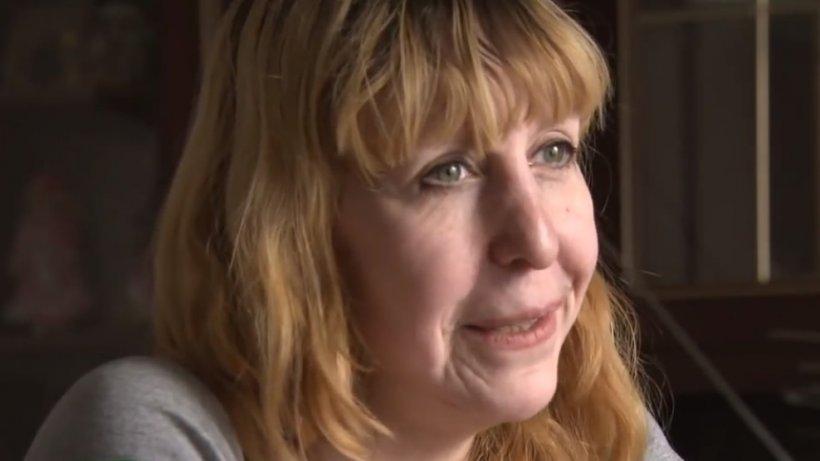 Cum arată o tânără la numai 19 ani.  Boala care o îmbătrânește prematur - VIDEO