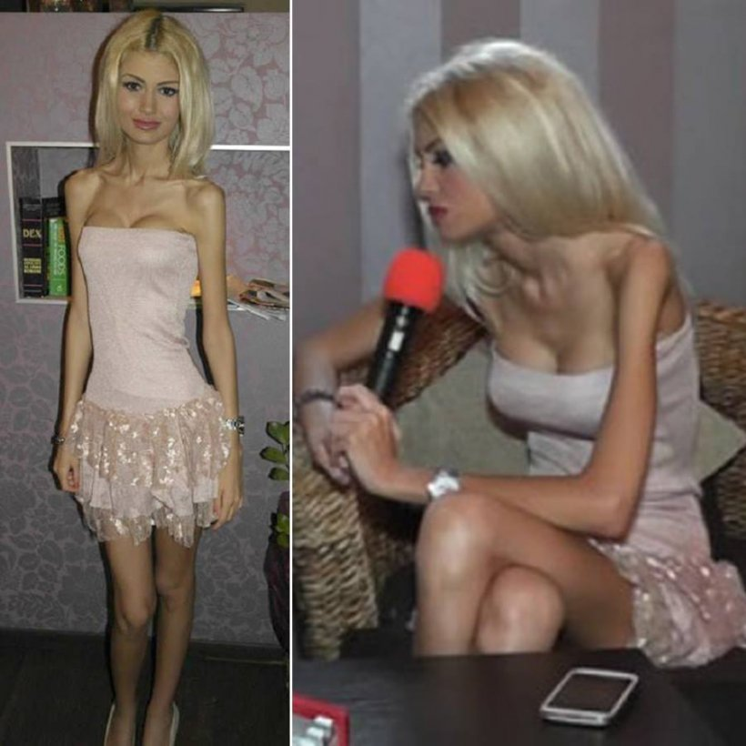 O mai ţii minte pe Flavia? In 2013, era cea mai anorexică femeie! Acum s-a căsătorit! Aşa arată în rochie de mireasă!