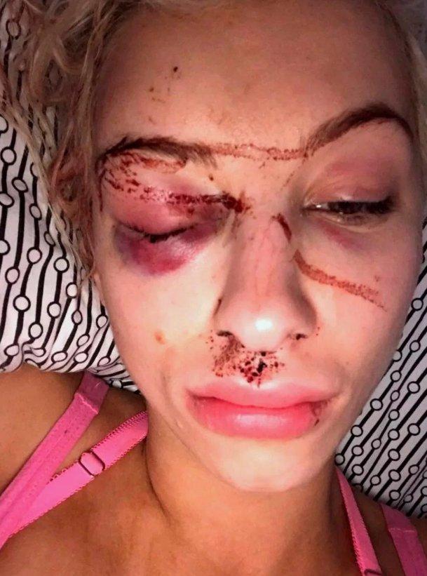 A fost bătută cu sălbăticie timp de 21 de ore. Cum a scăpat acest fotomodel de furia prietenului, cu ajutorul unui selfie 127
