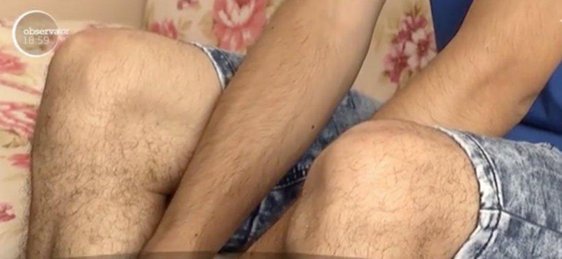 VIDEO! Un adolescent de 18 ani din Romania, mutilat după ce telefonul mobil i-a explodat în buzunar! Imagini SOC!