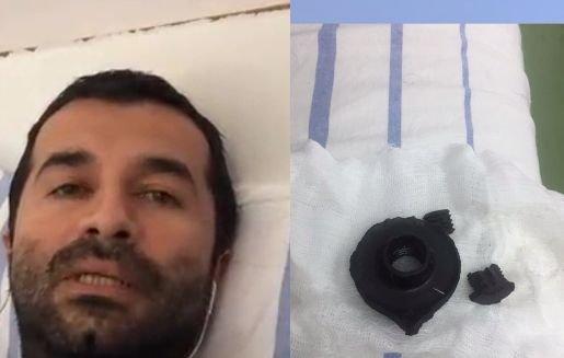 """Un bărbat lovit la protestele din Piața Victoriei acuză jandarmii că mint. """"Nu am fost avertizați"""""""