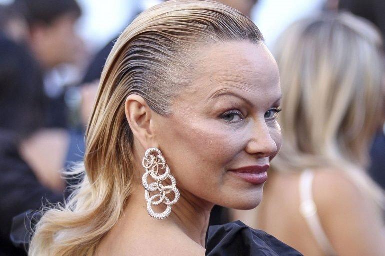 Pamela Anderson a ajuns în cârje la 51 de ani! Ce s-a întâmplat cu una dintre cele mai sexy femei din lume?