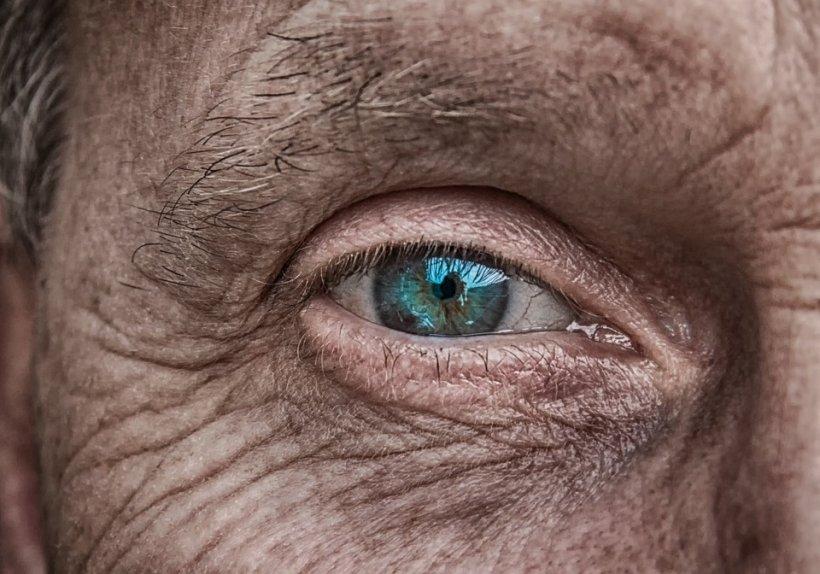 Maladia Alzheimer poate fi detectată într-un stadiu incipient. Iată cum!