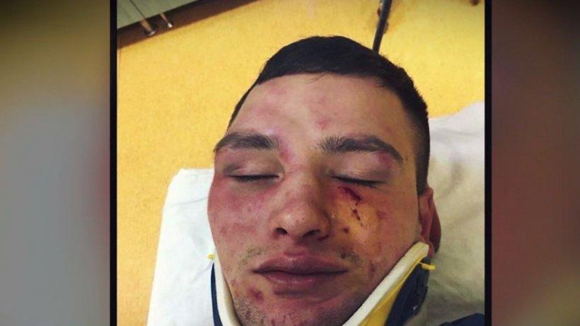 Un poliţist a fost snopit în bătaie de un om de afaceri pentru o amendă din trecut