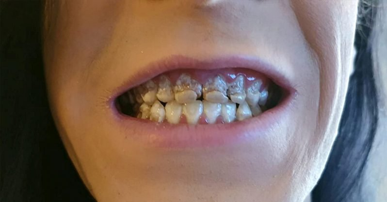 """Ani la rând a avut acest obicei și a ajuns să arate așa! Dentistul s-a îngrozit când l-a văzut: """"Mi-a spus că este unul dintre cele mai grave cazuri pe care le-a văzut vreodată!"""""""
