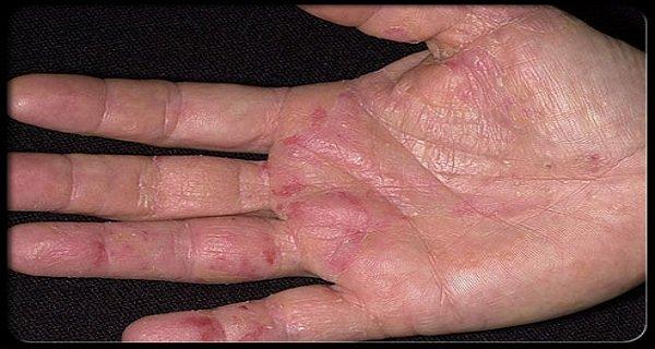 cancer de piele pe maini)