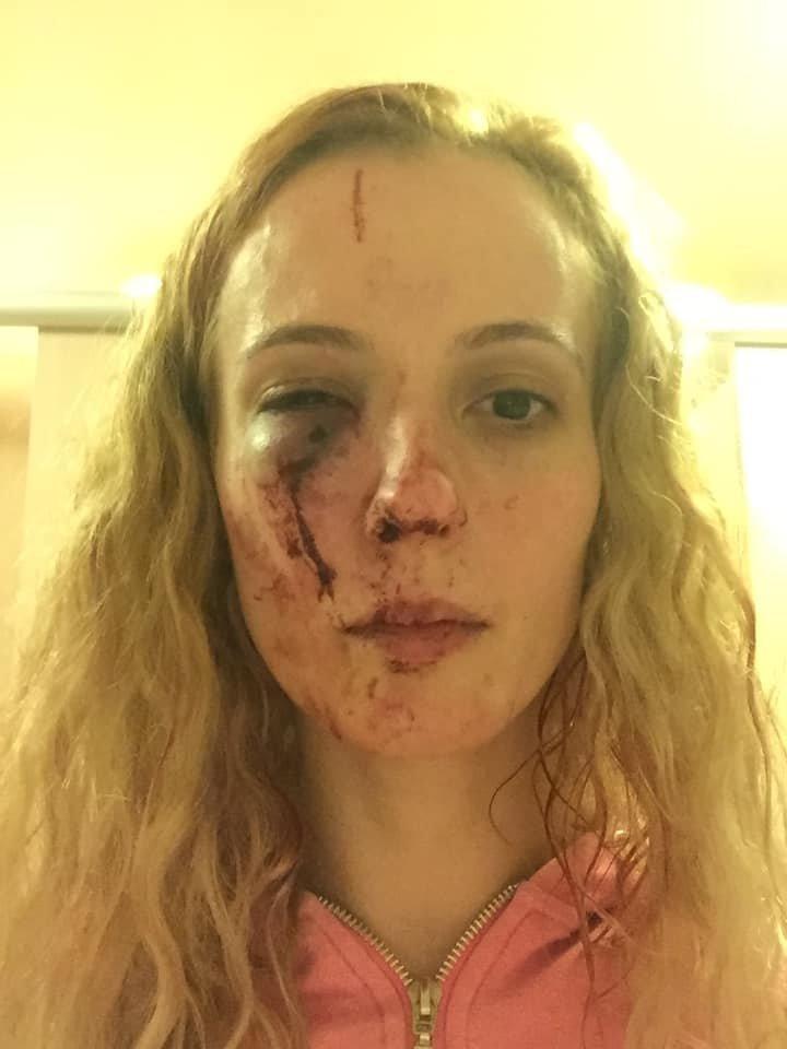 """Anca este românca desfigurată de un grup de adolescenți din Marea Britanie. """"Au luat foc și au sărit pe mine"""" FOTO 127"""
