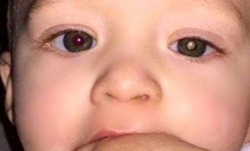 A observat ceva ciudat în poza făcută copilului. A mers la medic și a primit o veste șocantă