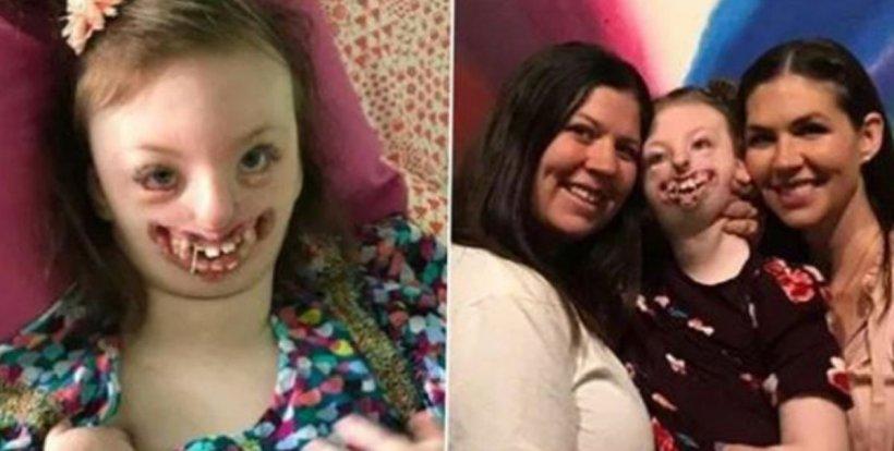 """Sophia, fetița desfigurată de boala Rett și pe care unii """"internauți"""" au batjocorit-o, a murit la vârsta de 10 ani"""